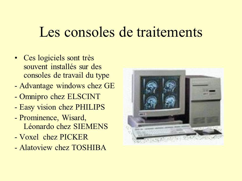 Les consoles de traitements Ces logiciels sont très souvent installés sur des consoles de travail du type - Advantage windows chez GE - Omnipro chez E