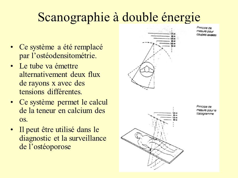 Scanographie à double énergie Ce système a été remplacé par lostéodensitométrie. Le tube va émettre alternativement deux flux de rayons x avec des ten
