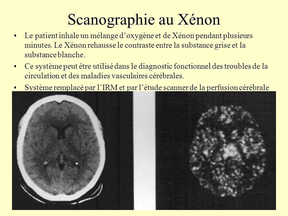 Scanographie au Xénon Le patient inhale un mélange doxygène et de Xénon pendant plusieurs minutes. Le Xénon rehausse le contraste entre la substance g