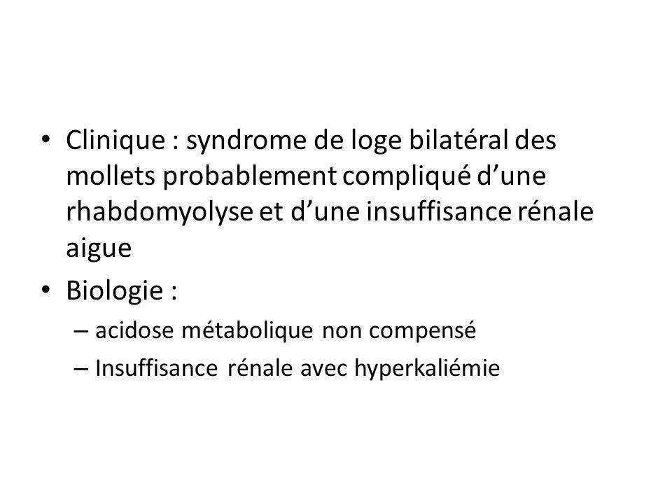 Clinique : syndrome de loge bilatéral des mollets probablement compliqué dune rhabdomyolyse et dune insuffisance rénale aigue Biologie : – acidose mét