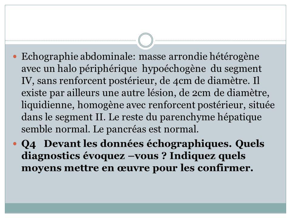 Echographie abdominale: masse arrondie hétérogène avec un halo périphérique hypoéchogène du segment IV, sans renforcent postérieur, de 4cm de diamètre