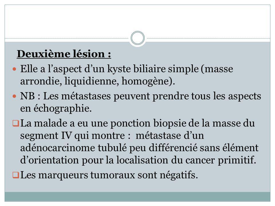 Deuxième lésion : Elle a laspect dun kyste biliaire simple (masse arrondie, liquidienne, homogène). NB : Les métastases peuvent prendre tous les aspec