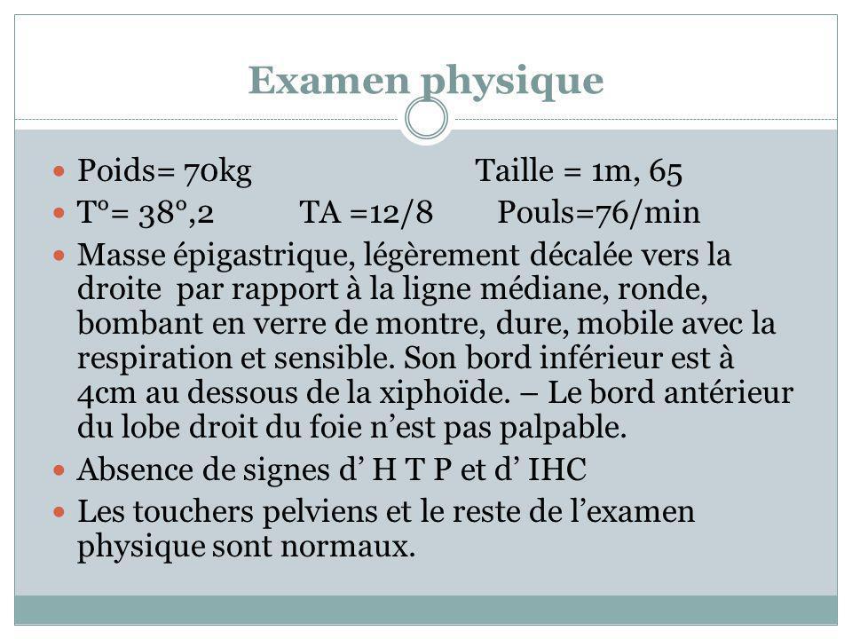 Examen physique Poids= 70kg Taille = 1m, 65 T°= 38°,2 TA =12/8 Pouls=76/min Masse épigastrique, légèrement décalée vers la droite par rapport à la lig