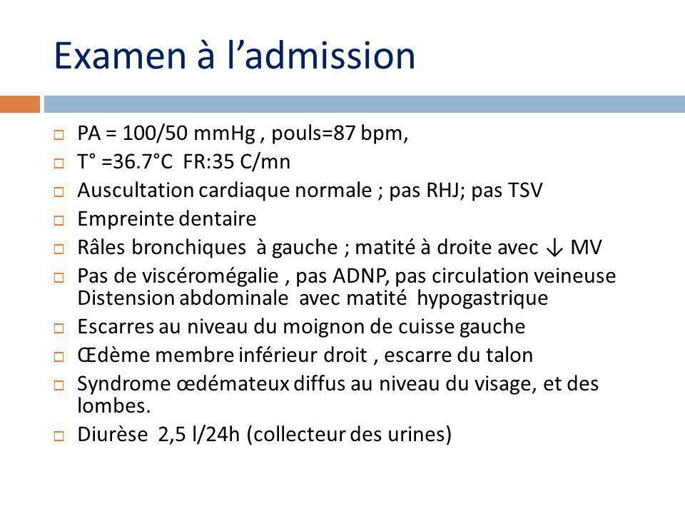 Examen à ladmission PA = 100/50 mmHg, pouls=87 bpm, T° =36.7°C FR:35 C/mn Auscultation cardiaque normale ; pas RHJ; pas TSV Empreinte dentaire Râles bronchiques à gauche ; matité à droite avec MV Pas de viscéromégalie, pas ADNP, pas circulation veineuse Distension abdominale avec matité hypogastrique Escarres au niveau du moignon de cuisse gauche Œdème membre inférieur droit, escarre du talon Syndrome œdémateux diffus au niveau du visage, et des lombes.
