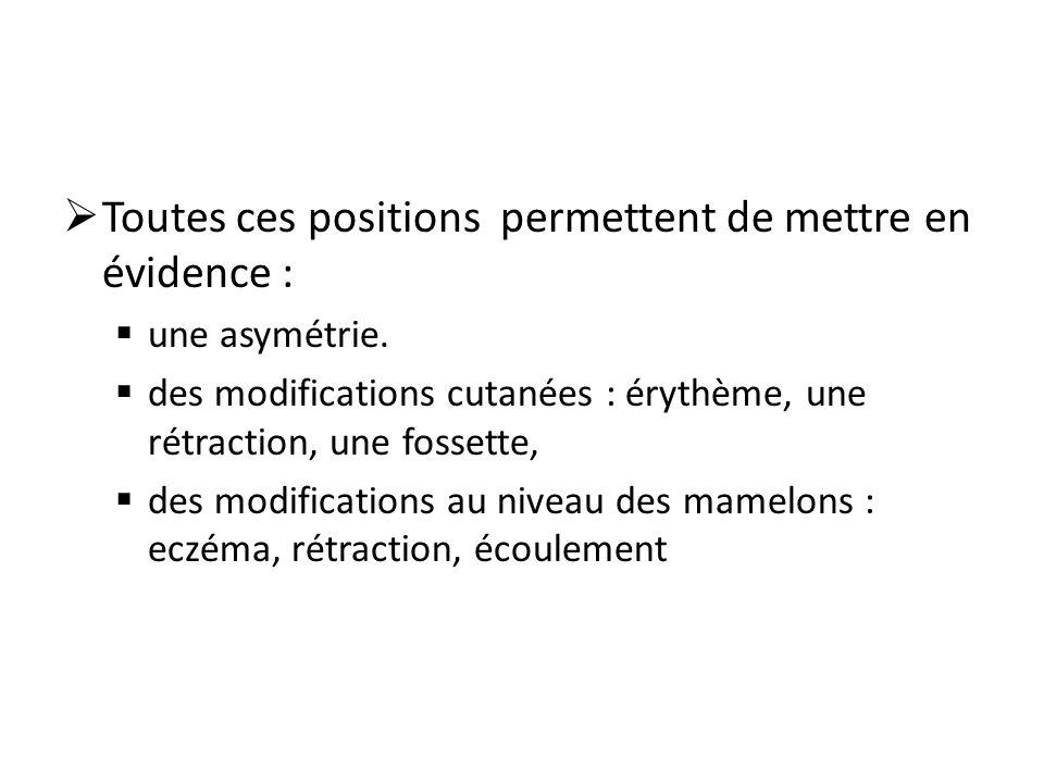 Toutes ces positions permettent de mettre en évidence : une asymétrie. des modifications cutanées : érythème, une rétraction, une fossette, des modifi