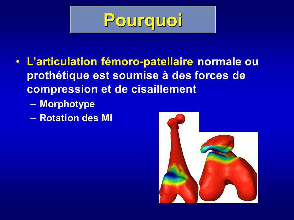 Larticulation fémoro-patellaire normale ou prothétique est soumise à des forces de compression et de cisaillement –Morphotype –Rotation des MI Pourquo