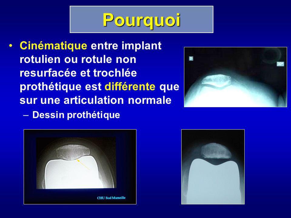 Cinématique entre implant rotulien ou rotule non resurfacée et trochlée prothétique est différente que sur une articulation normale –Dessin prothétiqu