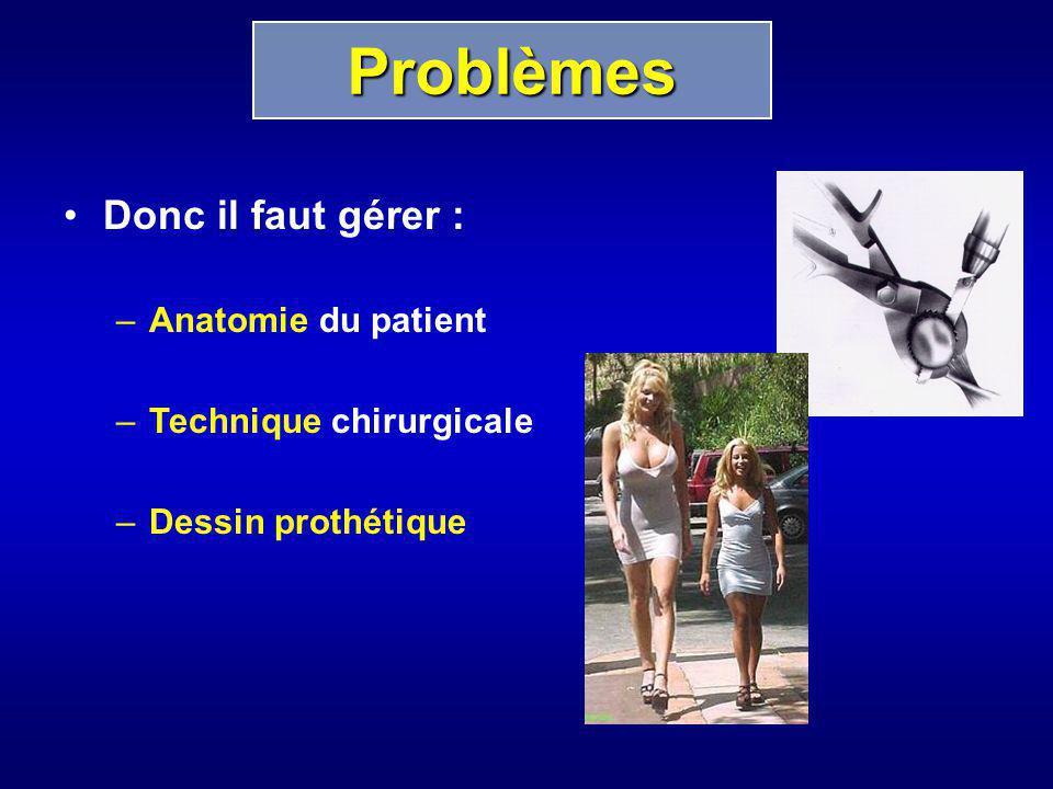 Donc il faut gérer : –Anatomie du patient –Technique chirurgicale –Dessin prothétique Problèmes