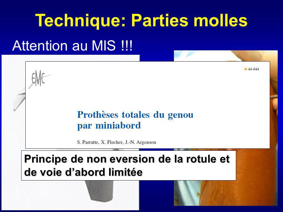 Technique: Parties molles Principe de non eversion de la rotule et de voie dabord limitée Attention au MIS !!!