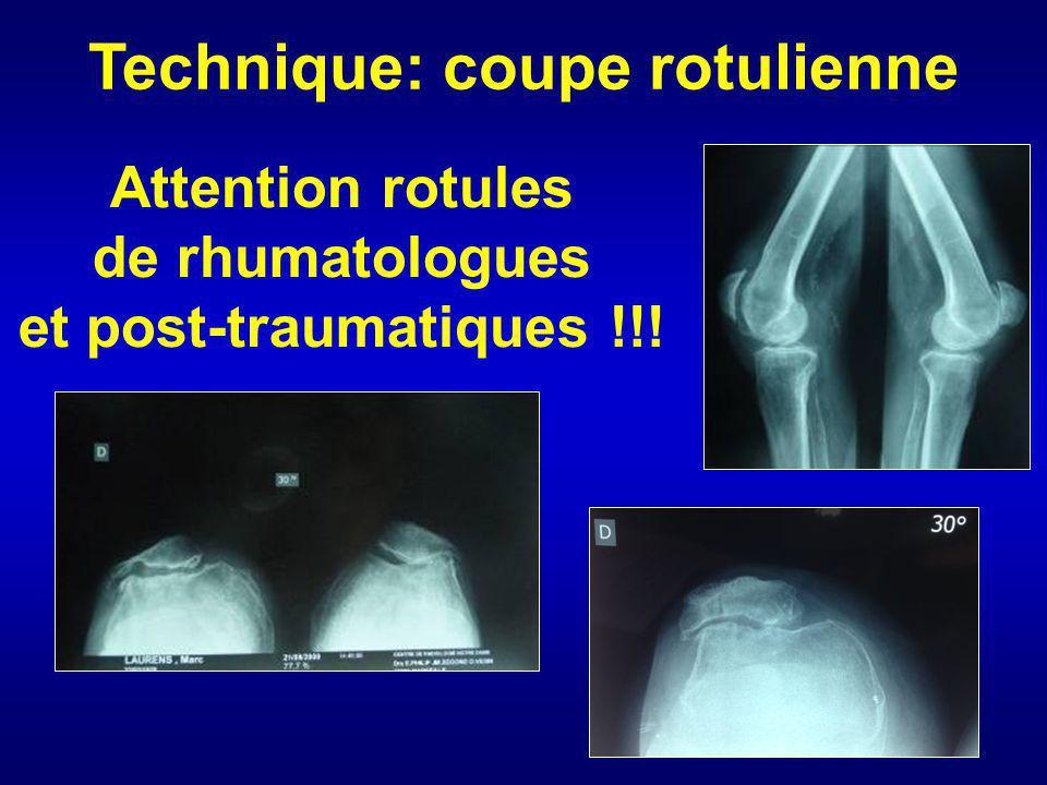Attention rotules de rhumatologues et post-traumatiques !!! Technique: coupe rotulienne