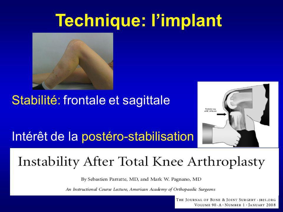 Stabilité: frontale et sagittale Intérêt de la postéro-stabilisation Technique: limplant