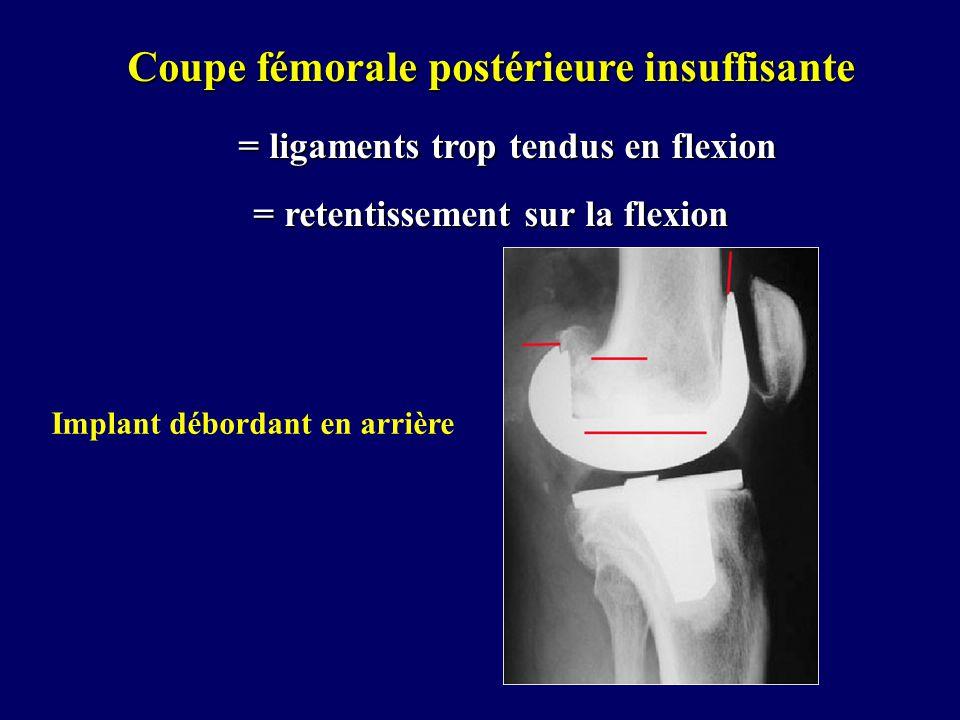 Implant débordant en arrière Coupe fémorale postérieure insuffisante = ligaments trop tendus en flexion = ligaments trop tendus en flexion = retentiss