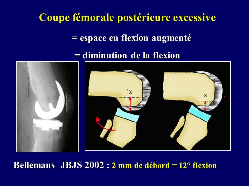 Coupe fémorale postérieure excessive = espace en flexion augmenté = espace en flexion augmenté = diminution de la flexion Bellemans JBJS 2002 2 mm de