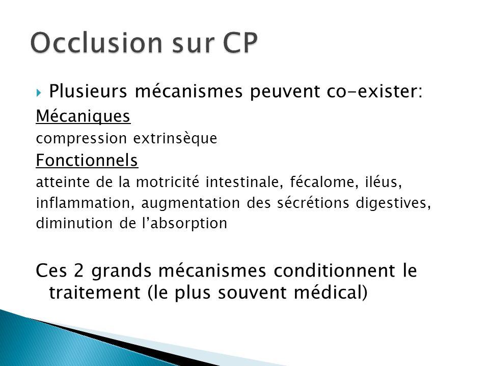 Plusieurs mécanismes peuvent co-exister: Mécaniques compression extrinsèque Fonctionnels atteinte de la motricité intestinale, fécalome, iléus, inflam