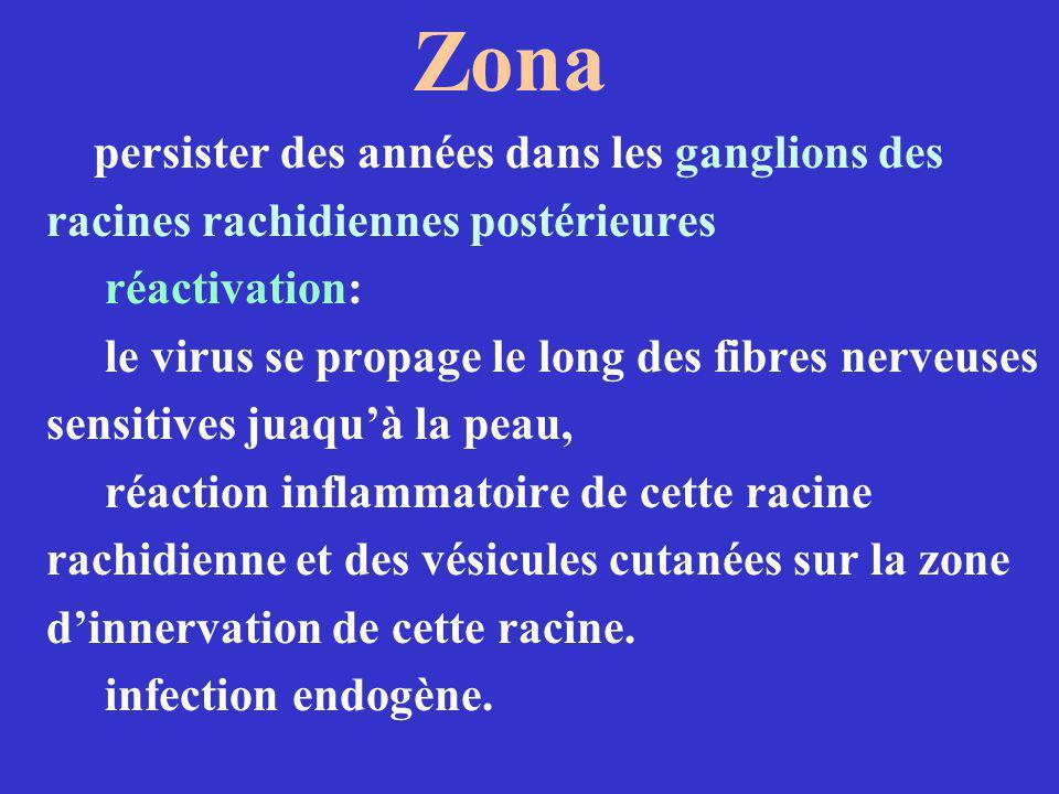 Zona persister des années dans les ganglions des racines rachidiennes postérieures réactivation: le virus se propage le long des fibres nerveuses sens
