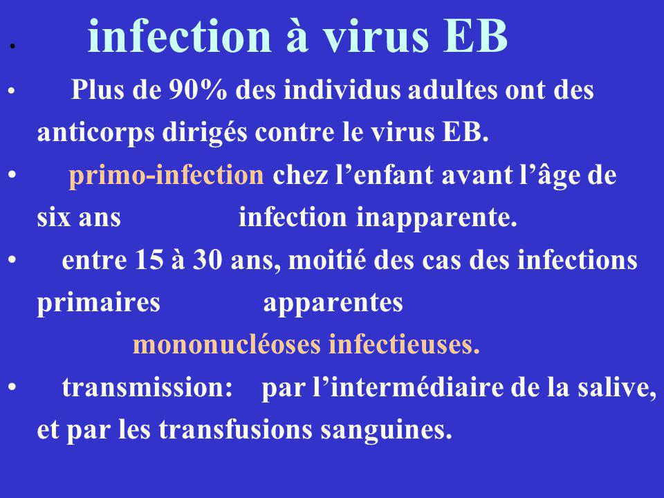 infection à virus EB Plus de 90% des individus adultes ont des anticorps dirigés contre le virus EB. primo-infection chez lenfant avant lâge de six an