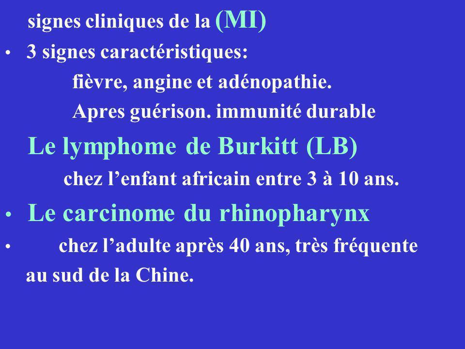 signes cliniques de la (MI) 3 signes caractéristiques: fièvre, angine et adénopathie. Apres guérison. immunité durable Le lymphome de Burkitt (LB) che
