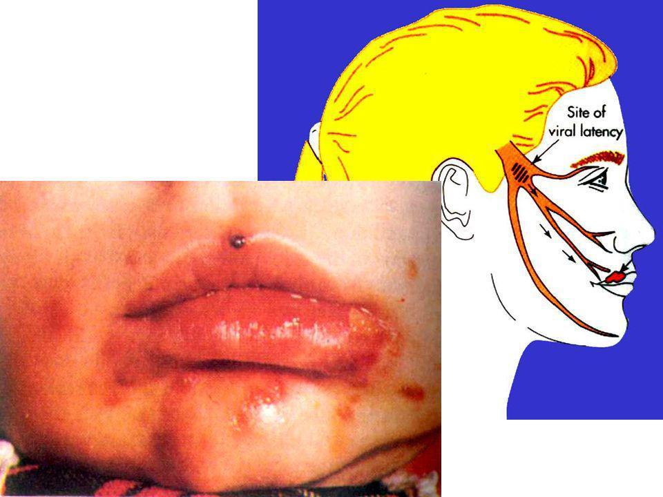 infection congénitale Quand la femme enceinte est infectée par HSV, soit la primo-infection, soit la récurrence, le virus peut contaminer le foetus ou le nouveau-né par la voie transplacentaire et par la voie génitale de la mère.