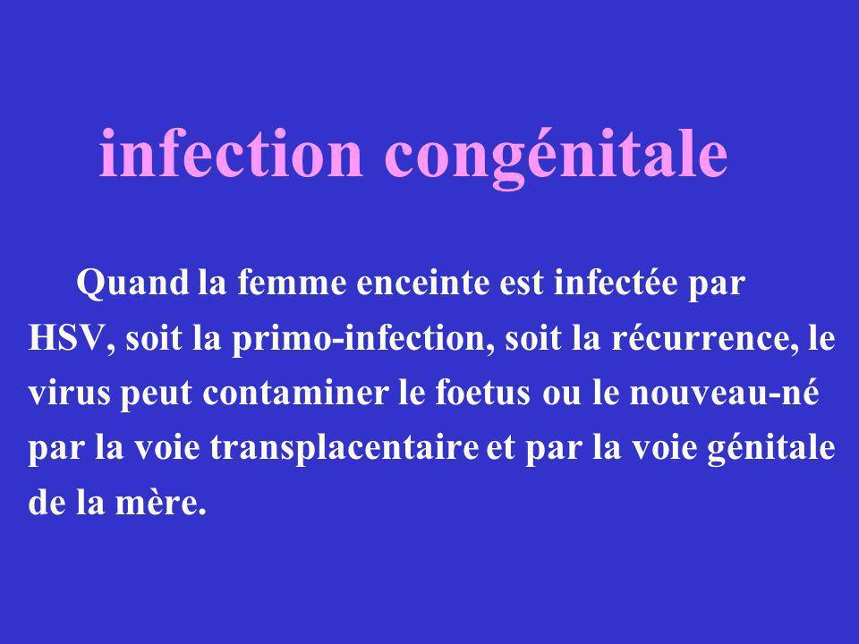Les virus de la varicelle et du Zona le même virus un type antigénique réservoir de virus humain.