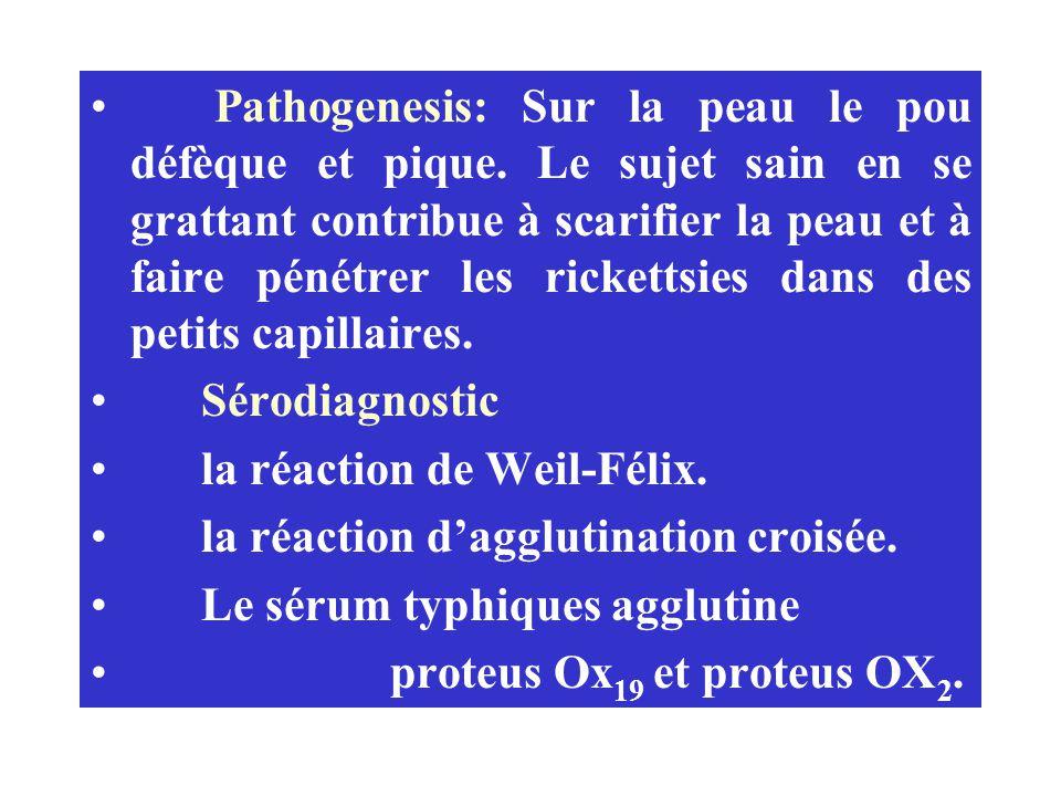 Pathogenesis: Sur la peau le pou défèque et pique. Le sujet sain en se grattant contribue à scarifier la peau et à faire pénétrer les rickettsies dans