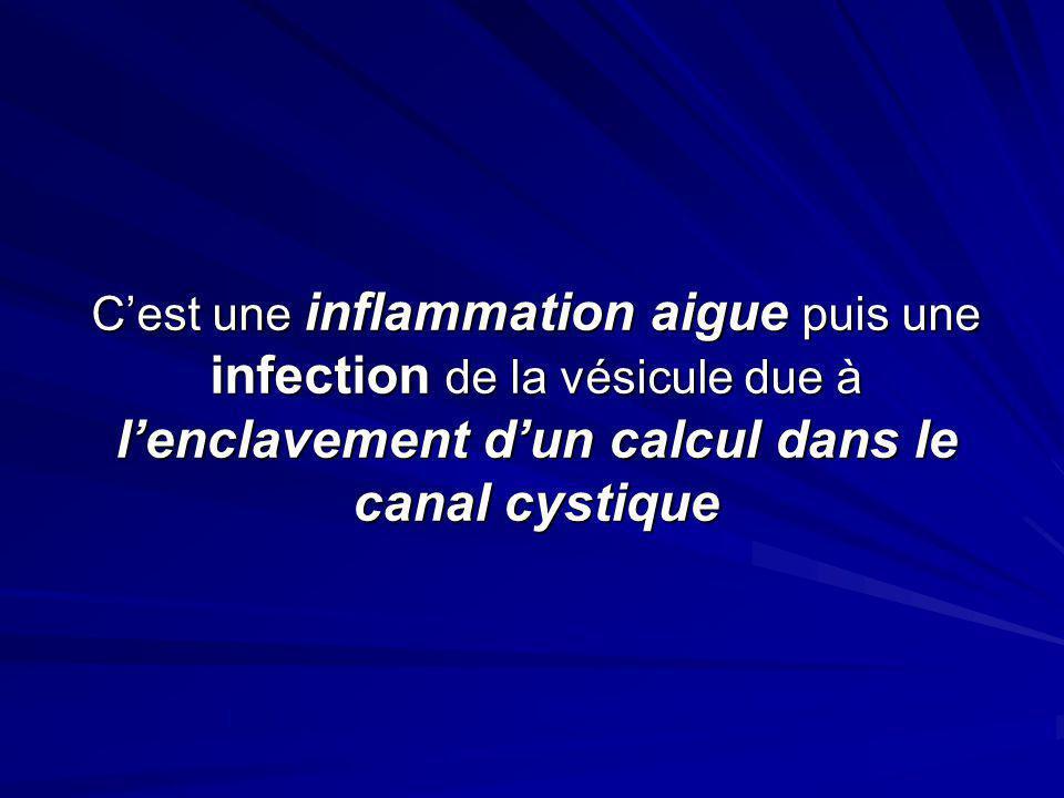 Cest une inflammation aigue puis une infection de la vésicule due à lenclavement dun calcul dans le canal cystique