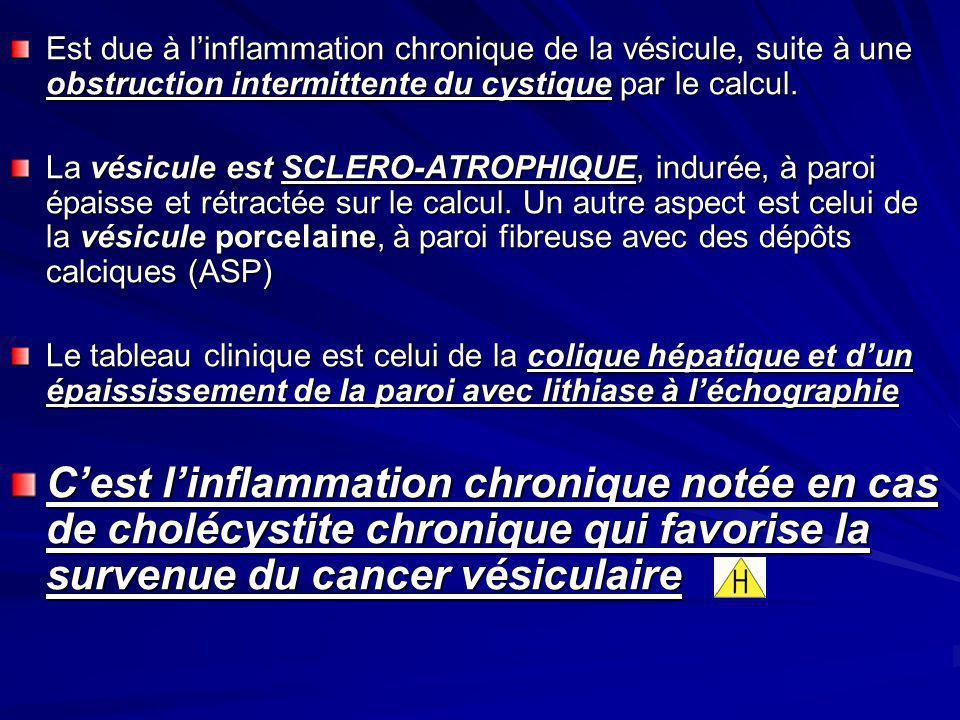 Est due à linflammation chronique de la vésicule, suite à une obstruction intermittente du cystique par le calcul. La vésicule est SCLERO-ATROPHIQUE,