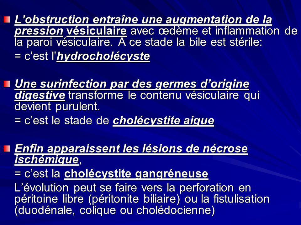 Lobstruction entraîne une augmentation de la pression vésiculaire avec œdème et inflammation de la paroi vésiculaire.