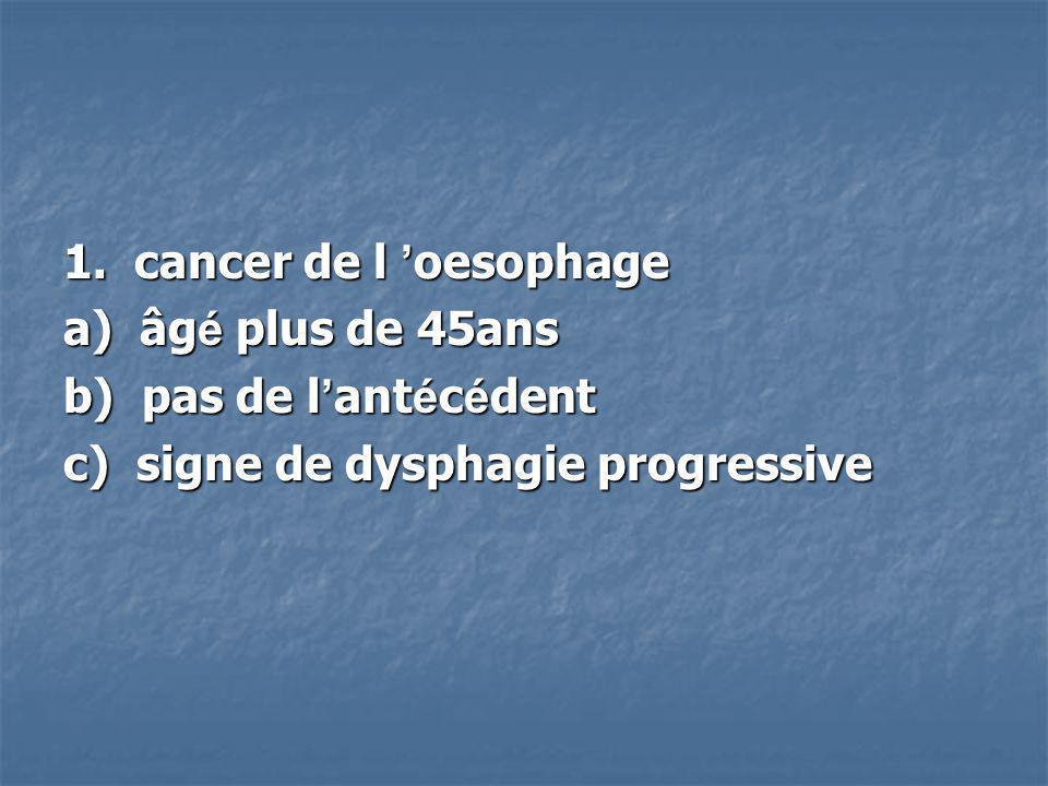 1. cancer de l oesophage a) âg é plus de 45ans b) pas de l ant é c é dent c) signe de dysphagie progressive