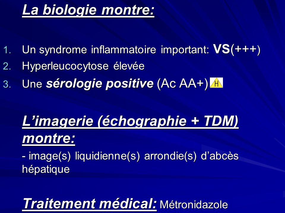 La biologie montre: 1. Un syndrome inflammatoire important: VS(+++ ) 2. Hyperleucocytose élevée 3. Une sérologie positive (Ac AA+) Limagerie (échograp