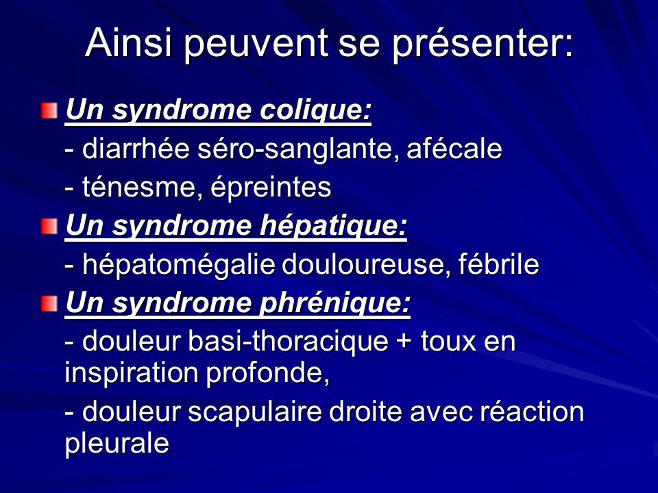 Ainsi peuvent se présenter: Un syndrome colique: - diarrhée séro-sanglante, afécale - ténesme, épreintes Un syndrome hépatique: - hépatomégalie doulou