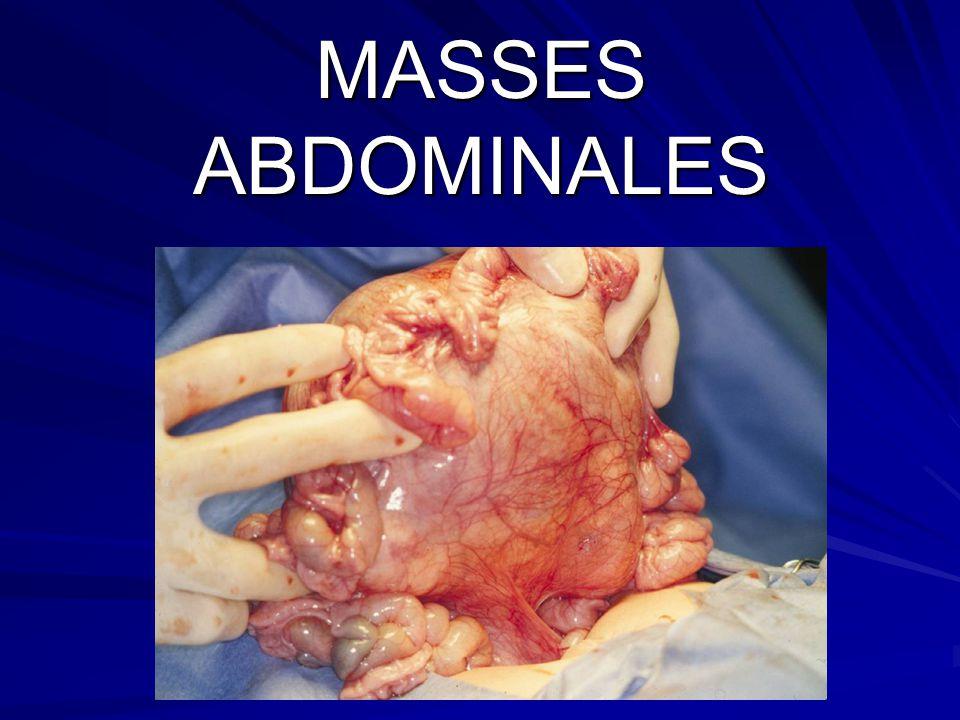 MASSES ABDOMINALES