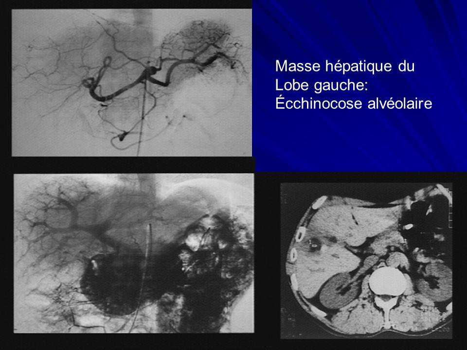 Masse hépatique du Lobe gauche: Écchinocose alvéolaire