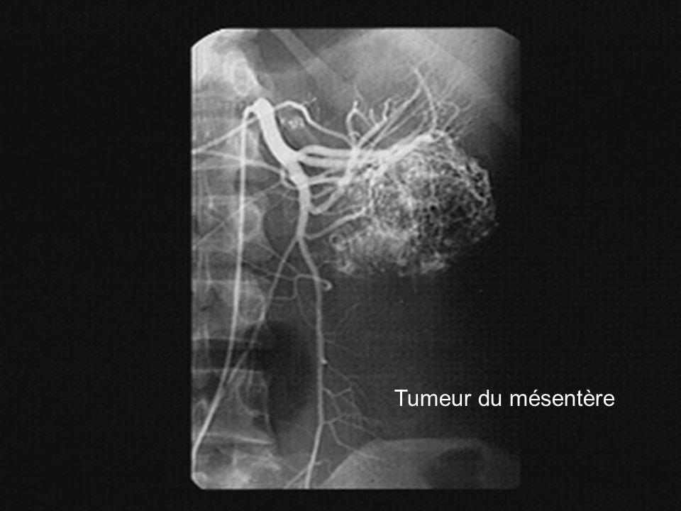 Tumeur du mésentère
