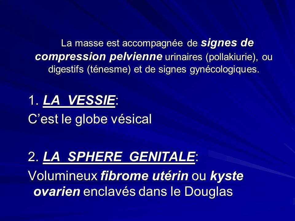 La masse est accompagnée de signes de compression pelvienne urinaires (pollakiurie), ou digestifs (ténesme) et de signes gynécologiques. La masse est