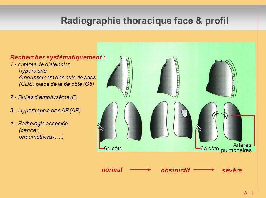 Radiographie thoracique face & profil A - I 6e côte Artères pulmonaires normal obstructifsévère Rechercher systématiquement : 1 - critères de distensi
