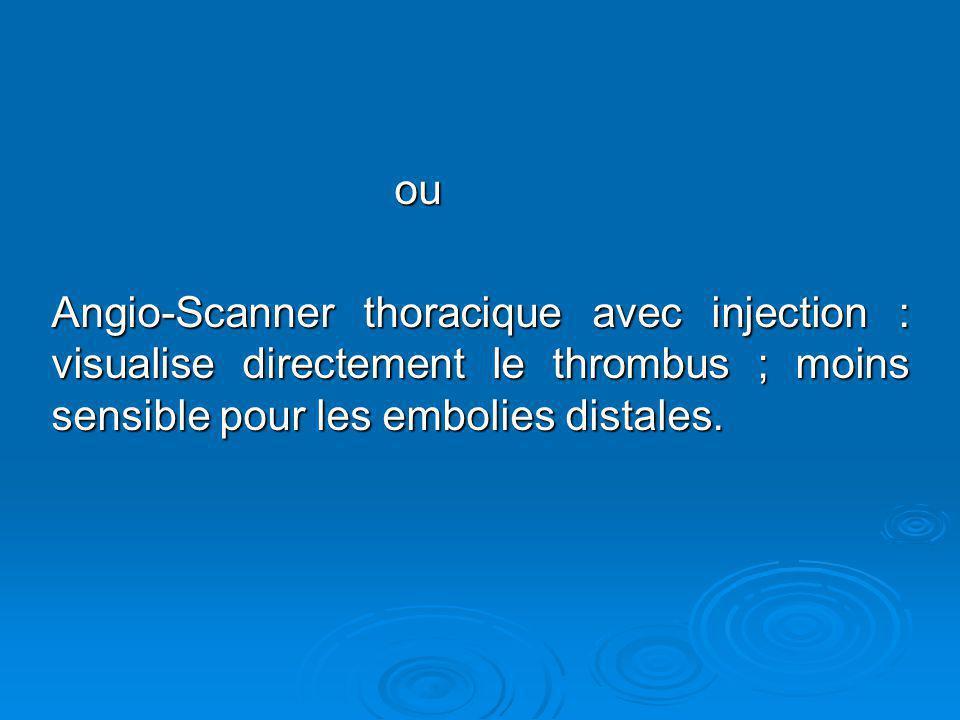 ou ou Angio-Scanner thoracique avec injection : visualise directement le thrombus ; moins sensible pour les embolies distales.