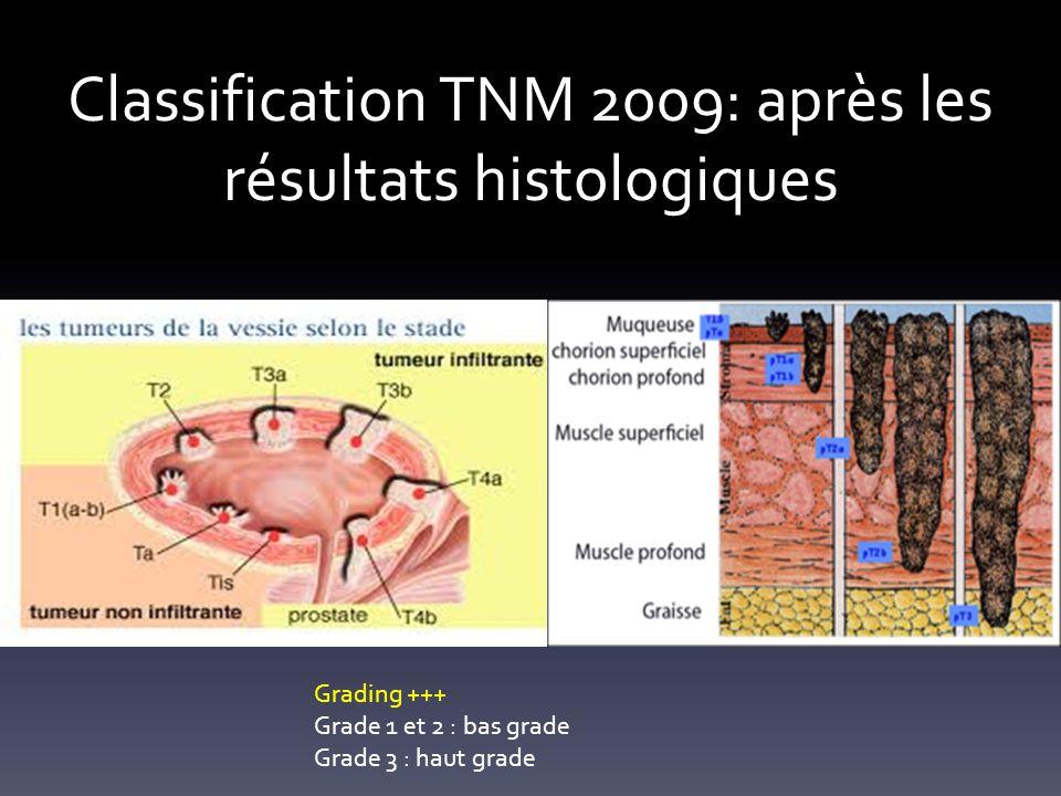 Classification TNM 2009: après les résultats histologiques Grading +++ Grade 1 et 2 : bas grade Grade 3 : haut grade