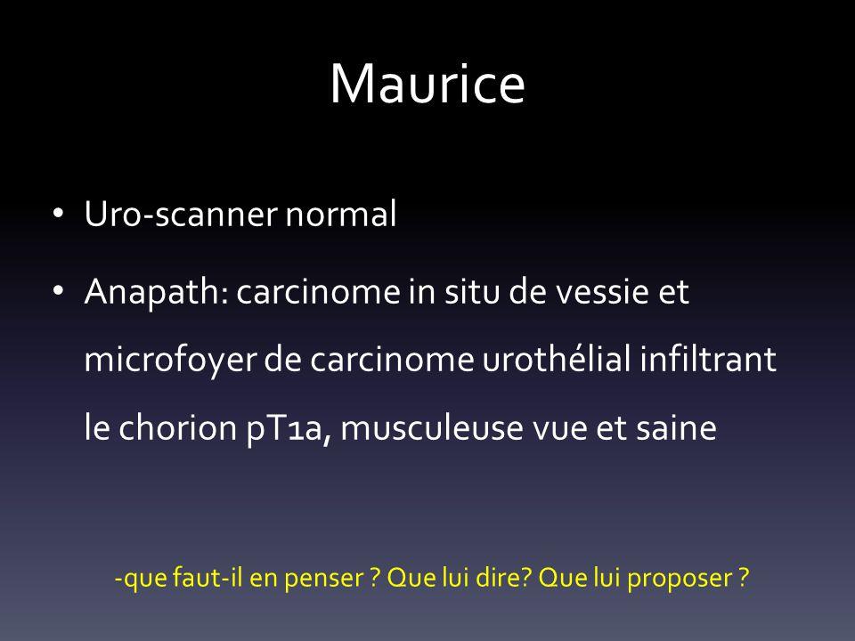 Maurice Uro-scanner normal Anapath: carcinome in situ de vessie et microfoyer de carcinome urothélial infiltrant le chorion pT1a, musculeuse vue et sa