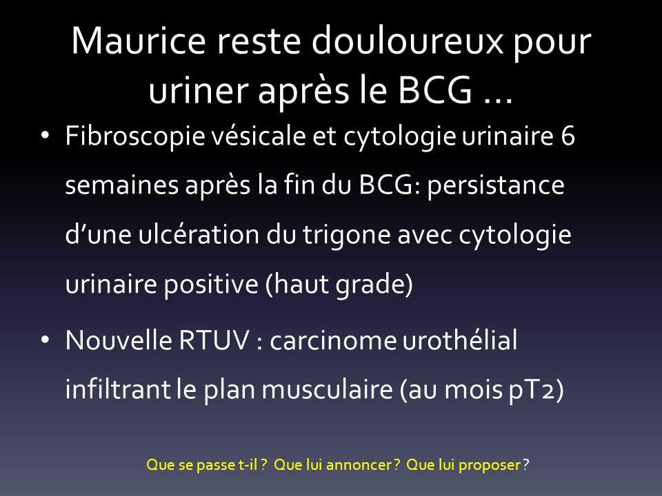 Maurice reste douloureux pour uriner après le BCG … Fibroscopie vésicale et cytologie urinaire 6 semaines après la fin du BCG: persistance dune ulcéra