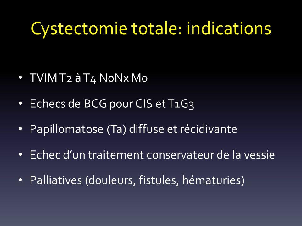 Cystectomie totale: indications TVIM T2 à T4 N0Nx M0 Echecs de BCG pour CIS et T1G3 Papillomatose (Ta) diffuse et récidivante Echec dun traitement con