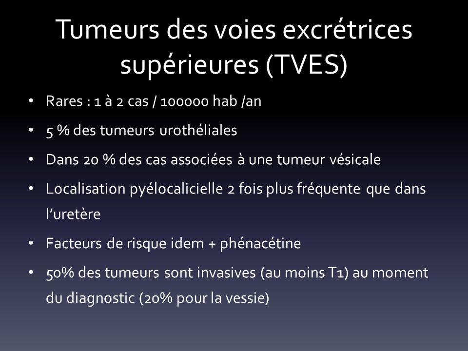 Tumeurs des voies excrétrices supérieures (TVES) Rares : 1 à 2 cas / 100000 hab /an 5 % des tumeurs urothéliales Dans 20 % des cas associées à une tum