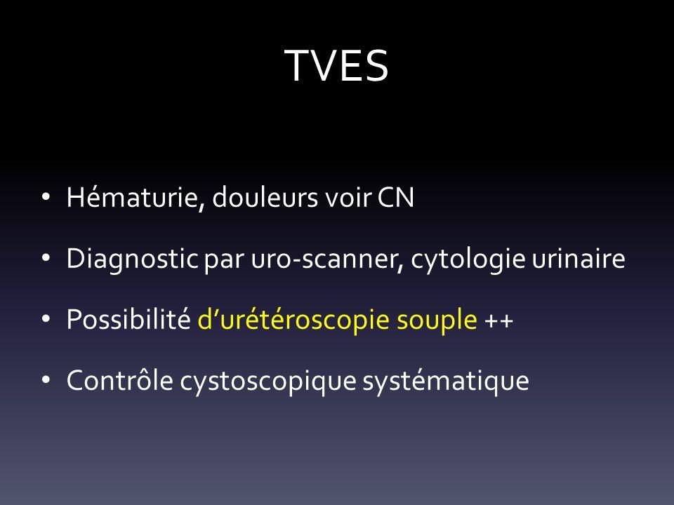 TVES Hématurie, douleurs voir CN Diagnostic par uro-scanner, cytologie urinaire Possibilité durétéroscopie souple ++ Contrôle cystoscopique systématiq