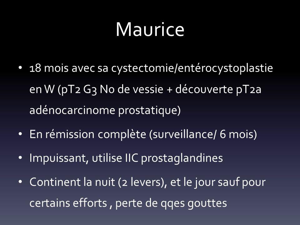 Maurice 18 mois avec sa cystectomie/entérocystoplastie en W (pT2 G3 N0 de vessie + découverte pT2a adénocarcinome prostatique) En rémission complète (