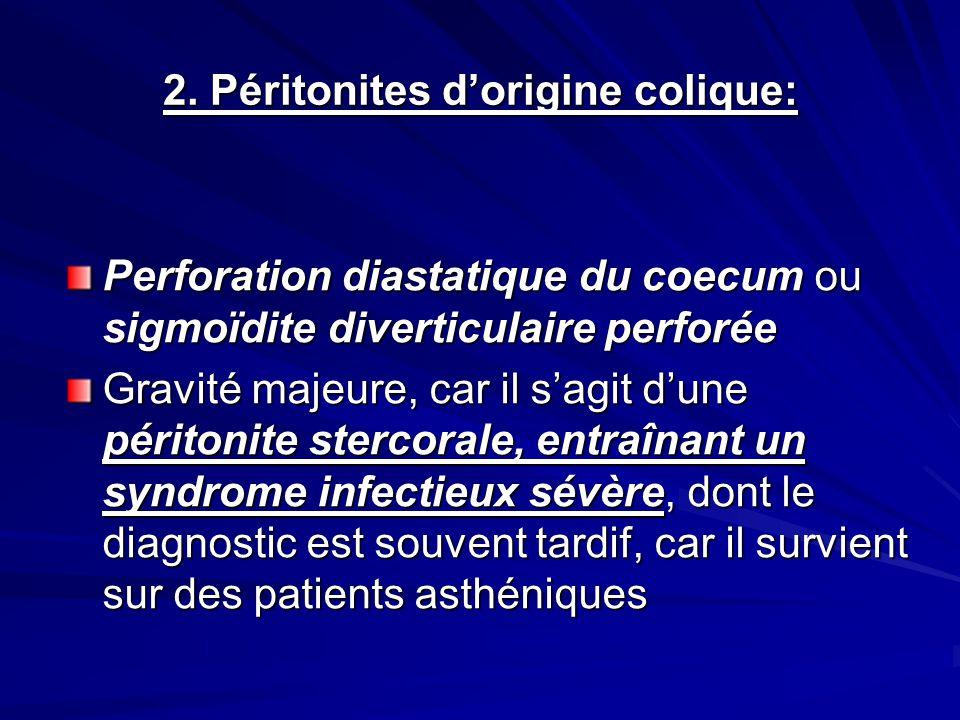 2. Péritonites dorigine colique: Perforation diastatique du coecum ou sigmoïdite diverticulaire perforée Gravité majeure, car il sagit dune péritonite