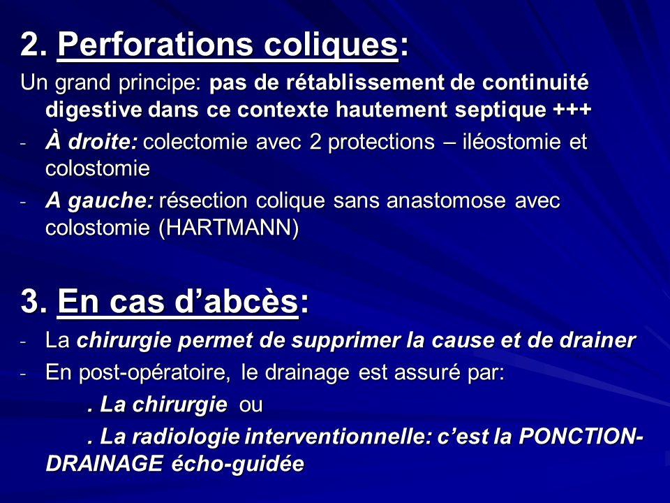 2. Perforations coliques: Un grand principe: pas de rétablissement de continuité digestive dans ce contexte hautement septique +++ - À droite: colecto