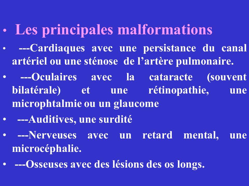 Les principales malformations ---Cardiaques avec une persistance du canal artériel ou une sténose de lartère pulmonaire. ---Oculaires avec la cataract