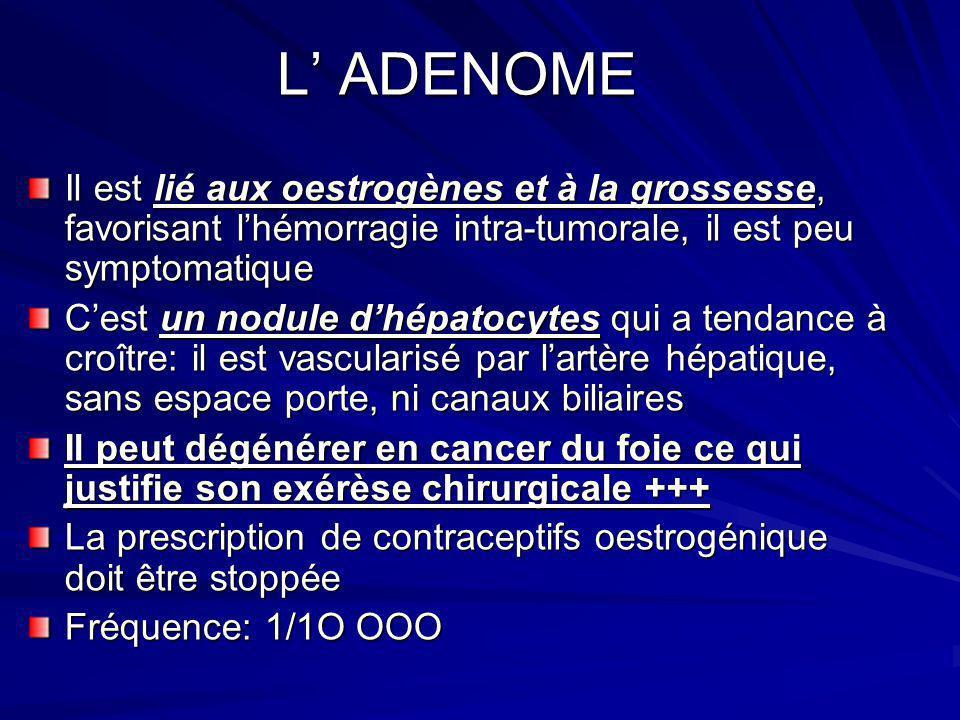 L ADENOME L ADENOME Il est lié aux oestrogènes et à la grossesse, favorisant lhémorragie intra-tumorale, il est peu symptomatique Cest un nodule dhépa