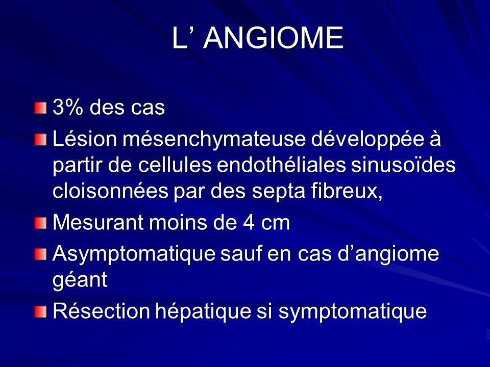 L ANGIOME L ANGIOME 3% des cas Lésion mésenchymateuse développée à partir de cellules endothéliales sinusoïdes cloisonnées par des septa fibreux, Mesu