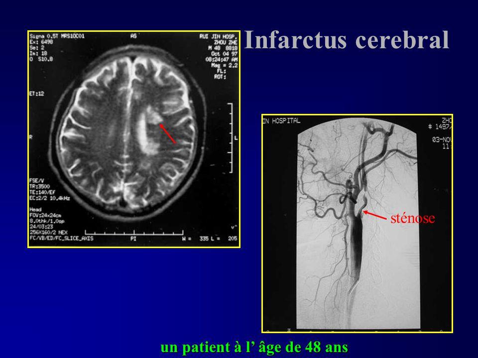 un patient à l âge de 48 ans sténose Infarctus cerebral