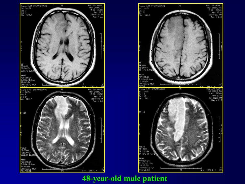 MRA Cerebral infarction
